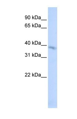 Western blot - TMEM82 antibody (ab84298)