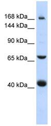 Western blot - ABCC9 antibody (ab84299)