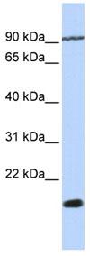 Western blot - TM4SF4 antibody (ab84300)