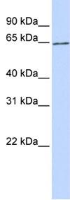 Western blot - SLC2A13 antibody (ab84301)