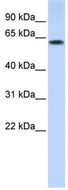 Western blot - MURF2 antibody (ab84302)