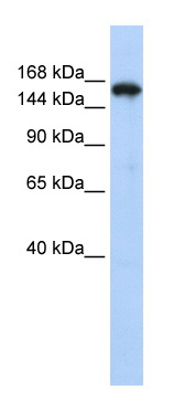 Western blot - Synaptojanin antibody (ab84309)