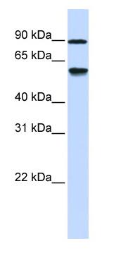 Western blot - ADHFE1 antibody (ab84313)