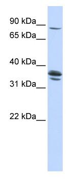 Western blot - SLCO3A1 antibody (ab84315)