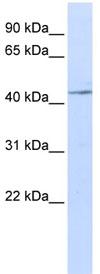 Western blot - IL11RA antibody (ab84316)