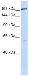 Western blot - MRP1 antibody (ab84320)