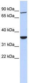 Western blot - FLJ46380 antibody (ab84321)