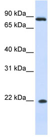 Western blot - IFNA7 antibody (ab84326)
