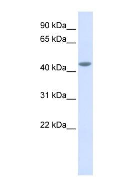 Western blot - IL11RA antibody (ab84328)