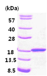 SDS-PAGE - Cardiac FABP protein (His tag) (ab84335)