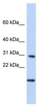 Western blot - POLR2K antibody (ab84336)