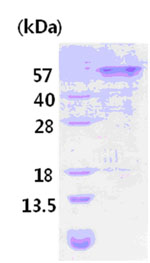 SDS-PAGE - SLC4A4 protein (His tag) (ab84337)