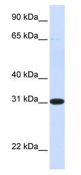 Western blot - PBLD antibody (ab84339)