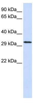 Western blot - C21orf2 antibody (ab84341)