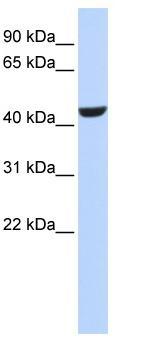 Western blot - Retinol dehydrogenase 16 antibody (ab84344)