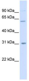 Western blot - Carbohydrate sulfotransferase 2 antibody (ab84354)