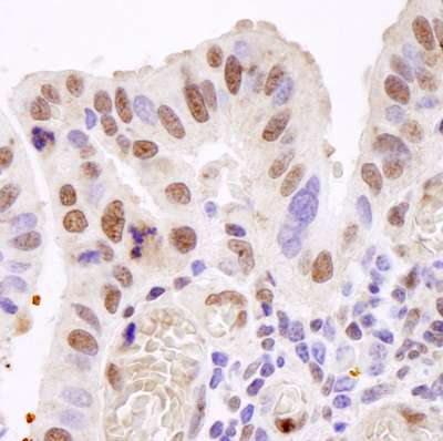 Immunohistochemistry (Formalin/PFA-fixed paraffin-embedded sections) - TAF15 antibody (ab84369)