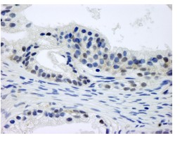 Immunohistochemistry (Formalin/PFA-fixed paraffin-embedded sections) - CSN1 antibody (ab84411)
