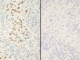 Immunohistochemistry (Formalin/PFA-fixed paraffin-embedded sections) - XRCC1 (phospho S518 + T519 + T523) antibody (ab84417)