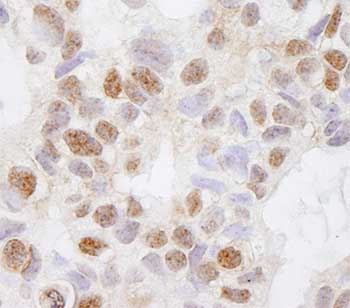 Immunohistochemistry (Formalin/PFA-fixed paraffin-embedded sections) - DHX38 antibody (ab84427)