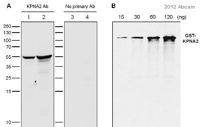 Western blot - Anti-KPNA2 antibody (ab84440)