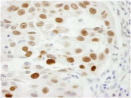 Immunohistochemistry (Formalin/PFA-fixed paraffin-embedded sections) - KPNA2 antibody (ab84440)