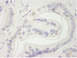 Immunohistochemistry (Formalin/PFA-fixed paraffin-embedded sections) - RC74 antibody (ab84443)