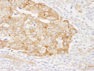 Immunohistochemistry (Formalin/PFA-fixed paraffin-embedded sections) - RCN1 antibody (ab84450)