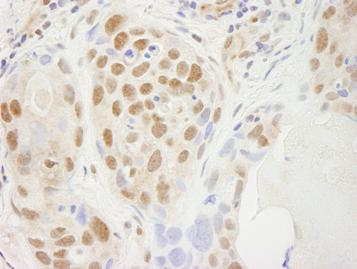 Immunohistochemistry (Formalin/PFA-fixed paraffin-embedded sections) - SUPT5H antibody (ab84451)