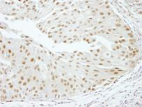 Immunohistochemistry (Formalin/PFA-fixed paraffin-embedded sections) - RBM16 antibody (ab84452)