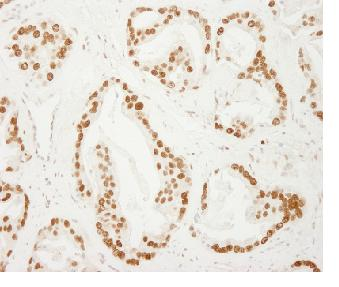 Immunohistochemistry (Formalin/PFA-fixed paraffin-embedded sections) - PC4 antibody (ab84459)