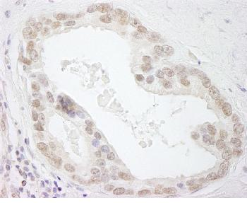 Immunohistochemistry (Formalin/PFA-fixed paraffin-embedded sections) - HMGN3 antibody (ab84465)