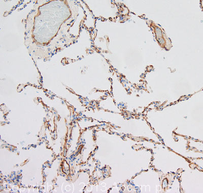 Immunohistochemistry (Formalin/PFA-fixed paraffin-embedded sections) - Anti-CRLR antibody (ab84467)
