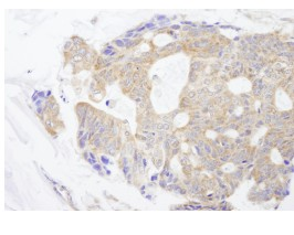 Immunohistochemistry (Formalin/PFA-fixed paraffin-embedded sections) - CAD antibody (ab84474)