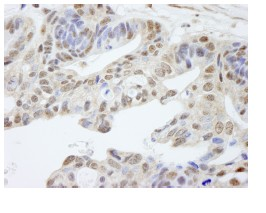 Immunohistochemistry (Formalin/PFA-fixed paraffin-embedded sections) - UACA antibody (ab84478)