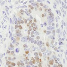 Immunohistochemistry (Formalin/PFA-fixed paraffin-embedded sections) - RCC2 antibody (ab84481)