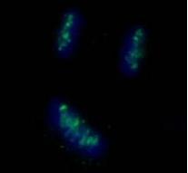 Immunocytochemistry/ Immunofluorescence - CENPB antibody (ab84489)