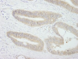 Immunohistochemistry (Formalin/PFA-fixed paraffin-embedded sections) - PTPN12 antibody (ab84493)