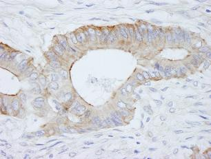 Immunohistochemistry (Formalin/PFA-fixed paraffin-embedded sections) - SPTBN1 antibody (ab84498)