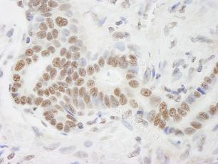 Immunohistochemistry (Formalin/PFA-fixed paraffin-embedded sections) - RNA Helicase A antibody (ab84499)