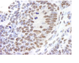 Immunohistochemistry (Formalin/PFA-fixed paraffin-embedded sections) - Timeless antibody (ab84502)