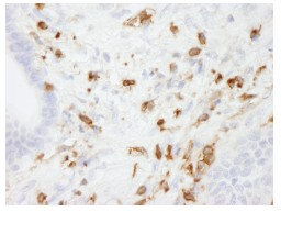 Immunohistochemistry (Formalin/PFA-fixed paraffin-embedded sections) - Coronin 1a antibody (ab84504)