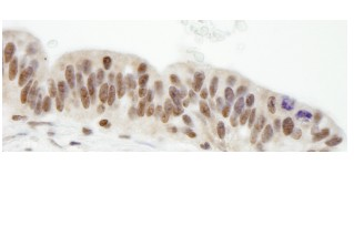 Immunohistochemistry (Formalin/PFA-fixed paraffin-embedded sections) - ZHX1 antibody (ab84506)