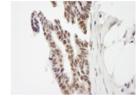 Immunohistochemistry (Formalin/PFA-fixed paraffin-embedded sections) - ZMYM3 antibody (ab84507)