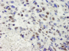 Immunohistochemistry (Formalin/PFA-fixed paraffin-embedded sections) - hSET1 antibody (ab84510)