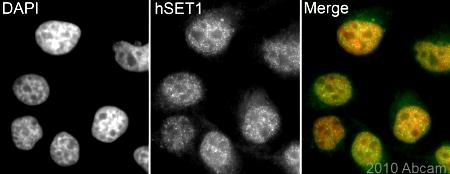Immunocytochemistry/ Immunofluorescence - hSET1 antibody (ab84510)