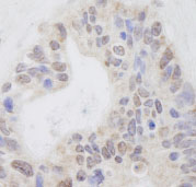 Immunohistochemistry (Formalin/PFA-fixed paraffin-embedded sections) - RNF40 antibody (ab84515)