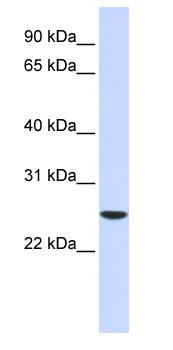 Western blot - HIP2 antibody (ab84517)