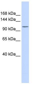 Western blot - Calcium Pump PMCA3 ATPase antibody (ab84521)