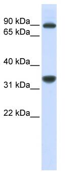 Western blot - RRP1B antibody (ab84522)